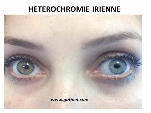 Hétérochromie hétérochromie irienne, yeux vairons - docteur damien gatinel