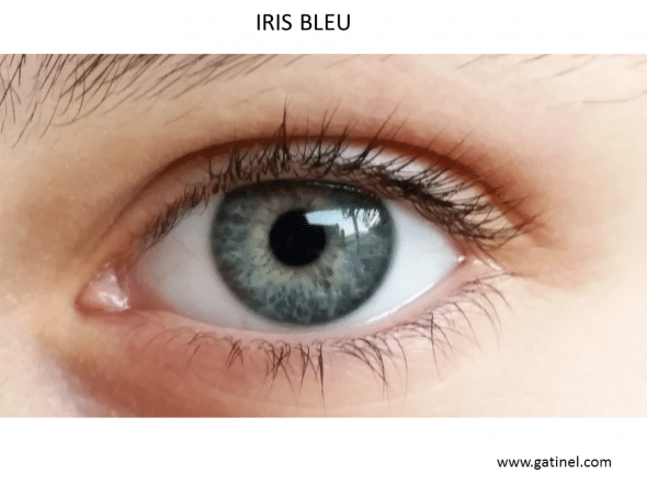 Example of iris (perceived as) Blue: this color is due to the lack of pigmentation of the anterior layer of the iris. Blue eyes do not have an iris blue (in the sense where it contains no blue pigment), but this color is linked to the preferential dissemination of the short wavelengths of the visible spectrum (just as the atmosphere preferentially diffuse blue which is the color of the sky). The local color of the iris weakly or not pigmented variations on its front are so induced by how irien fabric broadcasts reflecting incident light, which is usually polychromatic light natural (Sun) or artificial (bulbs). That is why the perceived as blue iris often have related variations of intensity or blue, or