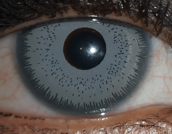 iris blue bright ocular