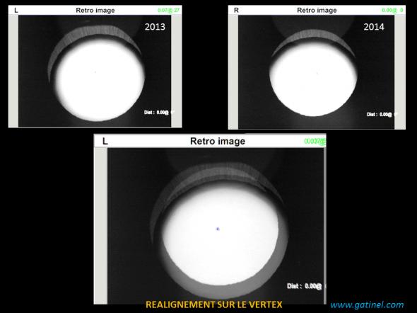L'image en rétro illumination fournie par l'OPDscan III est utile pour apprécier l'évolution sur une année de la subluxation. Après réalignement sur l'axe du vertex cornéen (croix centrale), on note la présence d'un petit croissant en supérieur qui montre l'accentuation de la situation ectopique du cristallin (œil gauche)