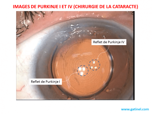 Purkinje I and IV cataract