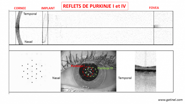 "Cliché in visible light of the anterior segment (bottom) and cut OCT (infrared light) at the top, revealing the angulation of the structures of the anterior segment with respect to the optical axis of the eye (the angle kappa, between the pupillary and Visual axes is particularly pronounced). Note the apparent ""tilt"" of the implant."