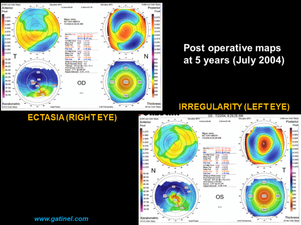 postoperative ectasia post LASIK Orbscan quadmap