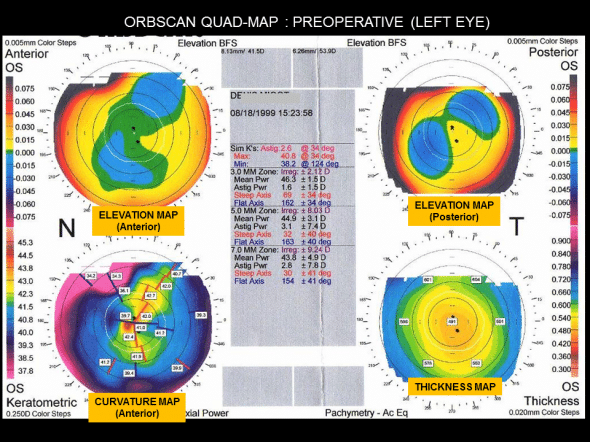 Preoperative Orbscan left eye