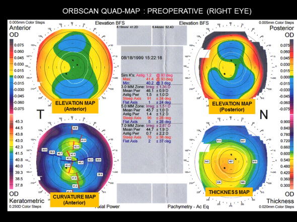 Orbscan quad maps