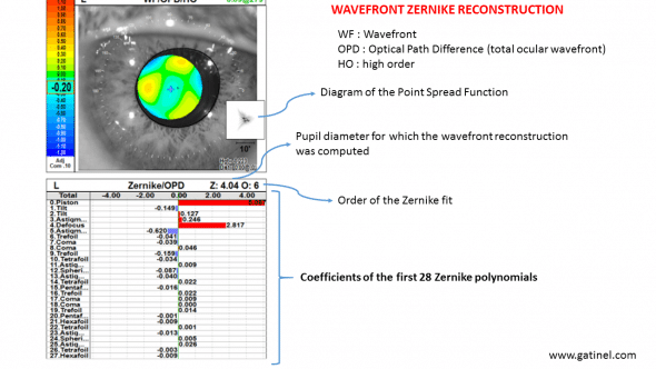 The wavefront sensor acquires optical data using a rotating slit and year automated skiascopy.