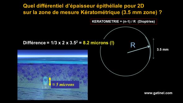 cicatrisation cornéenne épithélium CXL