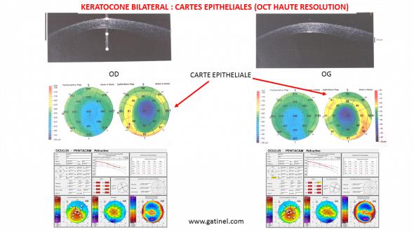 OCT haute résolution kératocône bilatéral