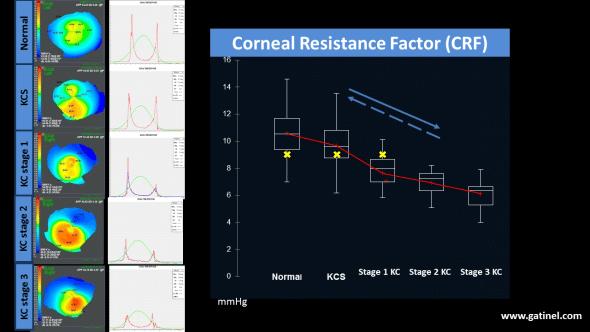 Quand on étudie la résistance cornéenne en fonction du stade du kératocône, on observe que l'instrument ORA met en évidence une tendance significative à la réduction de la valeur du CRF avec la progression du kératocône. Si le CXL était efficace, il n'y a aucune raison logique pour que l'instrument ne mette pas en évidence une augmentation de la résistance cornéenne (flèche pointillée).