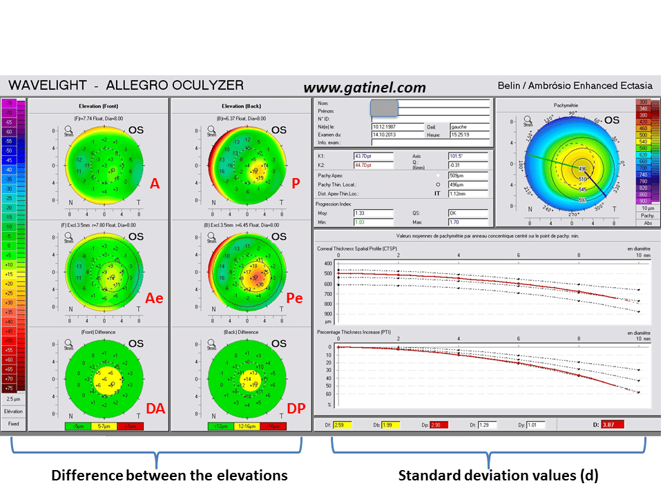 Indices And Screening Tests For Subclinical Keratoconus