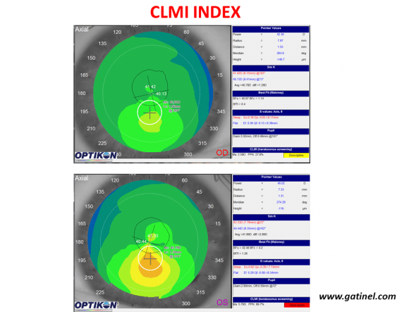Use the CLMI index with the Keratron Scout topographer (Optikon) for keratoconus screening. Maps are displayed in axial curvature mode. The right eye (top) present keratoconus suspect (PPK slightly higher than 25%, yellow colour code), while the left eye presents definite keratoconus (PPK close to 100%).
