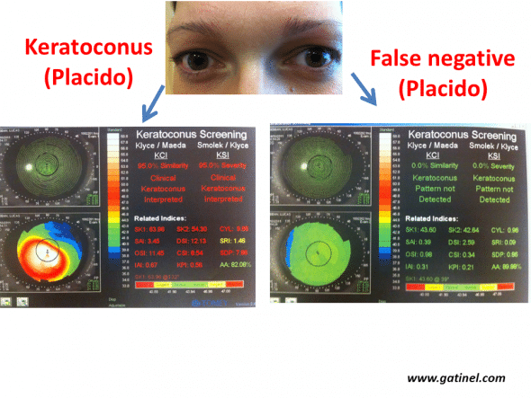 Example of definite forme fruste forms of keratoconus (left eye). The right eye presents advanced keratoconus, while the right eye presents a very early subclinical form, as the values for all indices are below the defined cut-offs (Klyce/Maeda and Smolek/Klyce indices, Keratoconus Screening neural network, Magellan topographer, Nidek, Japan). This eye can be considered to be false-negative for these tests.