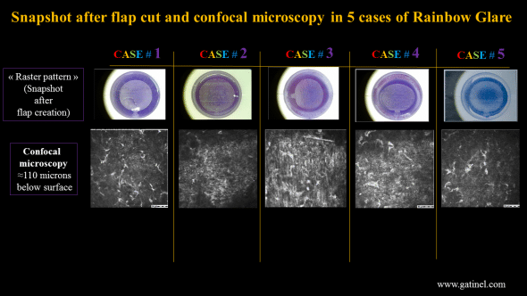 Images of the femtosecond laser flaps after their creation (top). Confocal microscopy at the flap interface, where hyperrelfective spot area are clearly visible (presumbly located at the back surface of the flap).