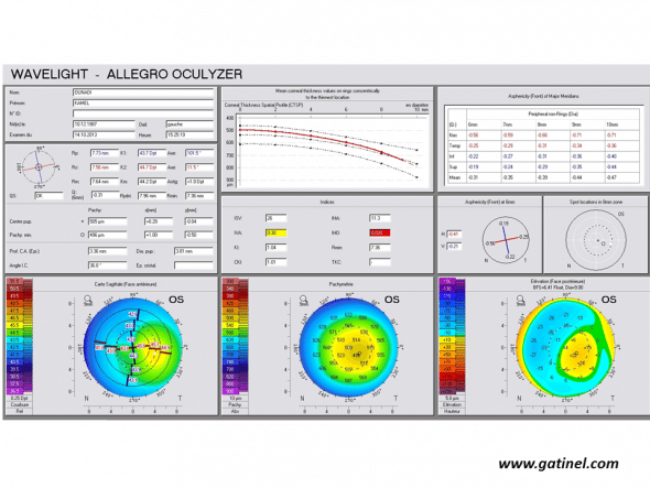 Positive keratoconus screening indices: the right eye present year advanced form of keratoconus we the Pentacam corneal topographer (Oculus, Germany) elevation. Mean corneal thickness is much lower than the mean, and the asphericity calculated for the main semimeridians is highly prolate.