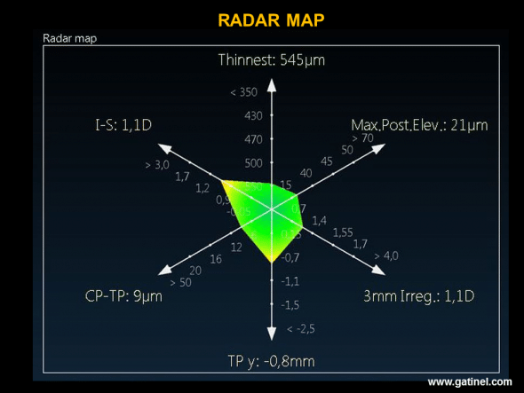 The Radar map visualizes the position of certain indices used in the score function: the presence of an abnormally high value is indicated by the use of a warm colour (yellow, orange, red): in this example, vertical decentration of the thinnest point and the value of the I-S index are situated about 2 standard deviations beyond the mean.