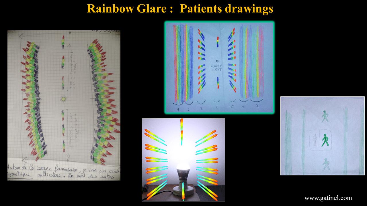 Rainbow glare: symptoms, causes, treatment - Docteur Damien