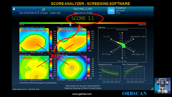 The final SCORE Analyzer GUI provides 3 additional graphs to the classic ORBSCAN quad-map display:-the SCORE bar, which visually locates the value SCORE was a linear color scale bar. -the RADAR map display, which is a new visually appealing and efficient map to help the clinician to appreciate the value of 6 relevant corneal topography derived indices - averaged pachymetry and pachymetry thinning curves, which provide the meridionally-averaged cross sectional analysis of the corneal thickness profile. Before the final GUI was finalized in 2011, we explored a range of different versions: creative process wandered in several directions as we imagined various proposals skit. Some of these are displayed hereafter: