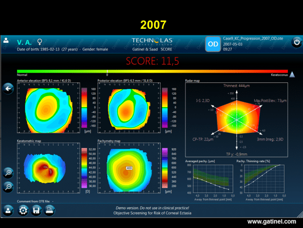 Progression of keratoconus. SCORE software map (right eye) in a patient with keratoconus, calculated retrospectively from the Orbscan examination performed in 2007.