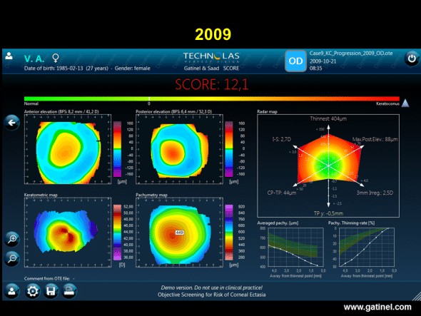 SCORE software map (right eye) in this same patient with keratoconus, calculated retrospectively from the Orbscan examination performed in 2009. Graphic comparison of colour topography maps does not indicate any progression of keratoconus. However, the score is higher, and the values of most of the indices of the radar map are also higher. The corneal thinning rate is considerably higher.
