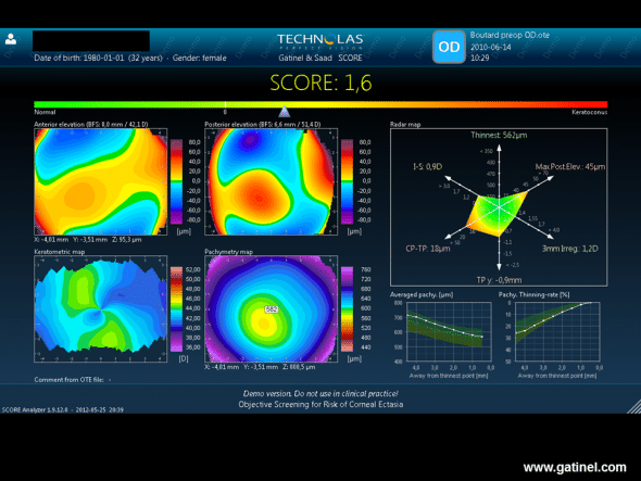 SCORE software was applied retrospectively to data of a preoperative Orbscan examination of the right eye with post-LASIK ectasia. It highlights certain preoperative abnormalities (Radar map), as well as a higher thinning rate in the centre (Pachy thinning rate). The score is positive.