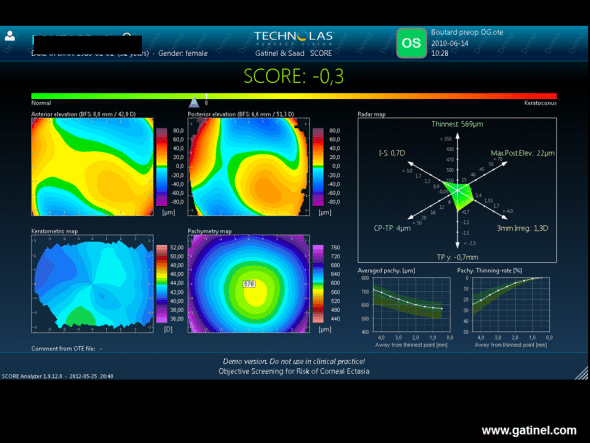 The score for the fellow eye calculated from the Orbscan examination performed before LASIK is slightly negative. The Radar map demonstrates the presence of vertical curvature asymmetry and inferior vertical decentration of the thinnest point.