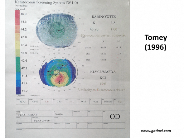 Example of the verdict of the automated keratoconus screening system used in 1996 on the TMS-2 topographer (Tomey): the appearance of the colourimetric map strongly suggests the presence of early but true keratoconus. The verdict of Rabinowitz and Klyce/Maeda automated indices is that of keratoconus-suspect.