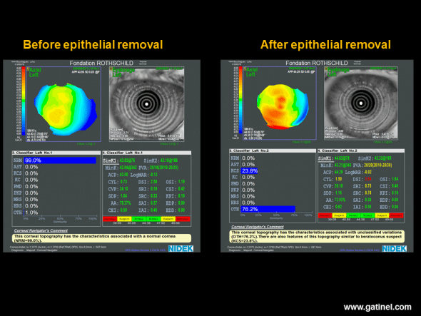 Axial Placido topography performed before (left) and after (right) removal of the corneal epithelium during a surface photoablation procedure (photorefractive keratectomy: PRK). Before photoablation, the inferior paracentral curvature is slightly increased. Neural network analysis suggests a normal anterior corneal surface, and the (I-S) value, calculated manually, is estimated at 0.6 D. After careful, atraumatic removal of the corneal epithelium, good quality reflection of Placido rings is obtained by Bowman's membrane, which presents a good quality lacrimal film, allowing calculation of the axial curvature map of the superficial stromal layer (Bowman/air interface). Bowman's membrane presents a globally steeper and more irregular appearance and increased values of CYL, DSI, SRI and SRC indices. Neural network analysis suggests the possibility of subclinical keratoconus-suspect. This is not an isolated case and suggests that the corneal epithelium tends to mask toricity, irregularity and asymmetry present in the superficial stromal layer of Bowman's membrane. This type of modification is impossible on the posterior surface of the cornea, which is devoid of stratified epithelium. This action of the epithelium is suggested more indirectly by the poorer correlation observed in corneas with keratoconus-suspect between the anterior and posterior values of certain parameters (asphericity, toricity), compared to those observed in healthy corneas.