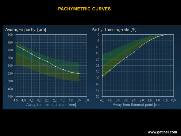 The average pachymetry map (Average pachy.) corresponds to the mean value of corneal thickness in 9 concentric rings (width: 0.5 mm) distributed from the thinnest point to the periphery of the cornea. The thinning rate map (Pachy. Thinning rate), expressed as a percentage, represents the thinning rate from the periphery to the centre of the cornea. The higher the thinning rate (lowest curve on the graph), the greater is the likelihood of a subclinical form of keratoconus. In this example, it is remarkable that, despite a considerably greater thickness than the mean on each concentric ring, the thinning rate is much higher and is situated at the limit of the normal range.