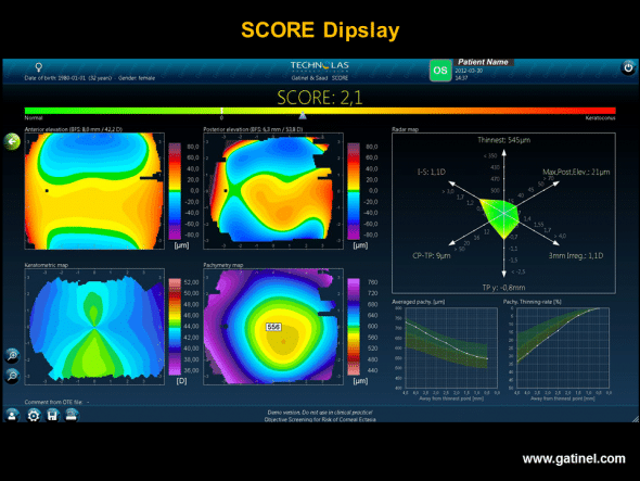SCORE software display: the map uses the classical Orbscan Quad Map display. The value of the SCORE corresponds to calculation of a discriminant function established from 12 indices. The optimal cut-off value is zero. In this example, the calculated score of 2.1 suggests the presence of subclinical keratoconus. This map (left eye) was obtained in a patient with advanced keratoconus of the right eye. Despite negative screening based on Placido topography alone (OPD Scan III, Klyce/Maeda indices, Corneal Navigator software), the score was strongly positive. Calculation of the score is based on 12 Placido topography, elevation and pachymetry indices.