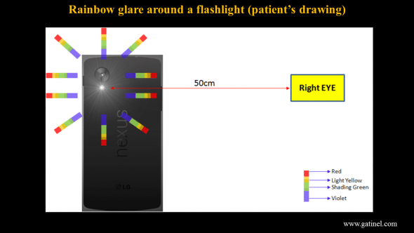 Patient's representation of its rainbow glare when looking at a bright light source (smartphone flashlamp).