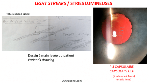 depiction of light streaks