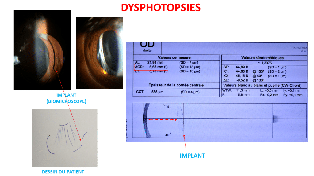 dysphotopsies