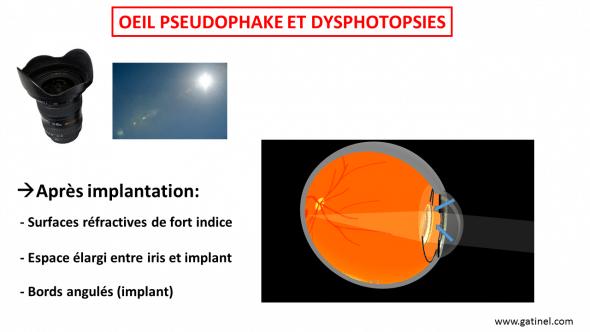 oeil pseudophake