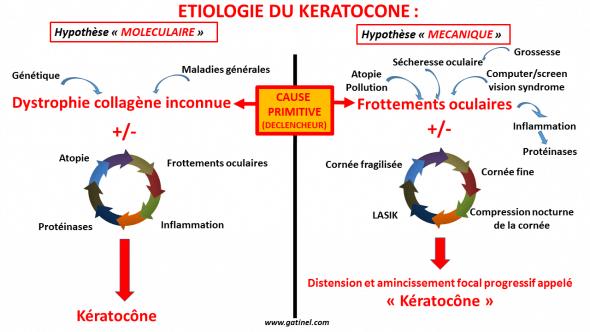 Etiologie du keratocone