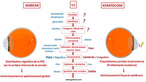 Marfan vs keratoconus