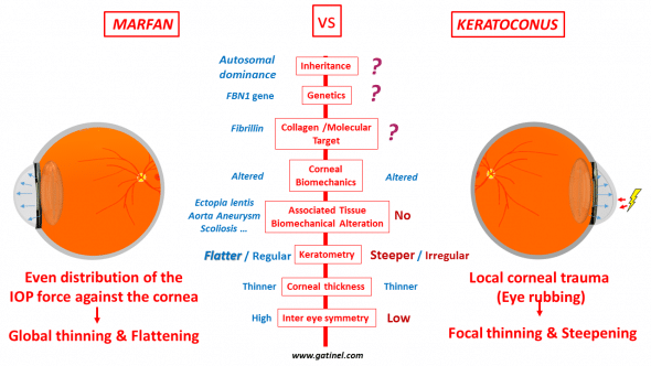 Marfan disease as an evidence of irrelevance of current theories about keratoconus genesis