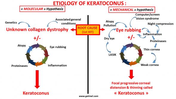 keratoconus cause