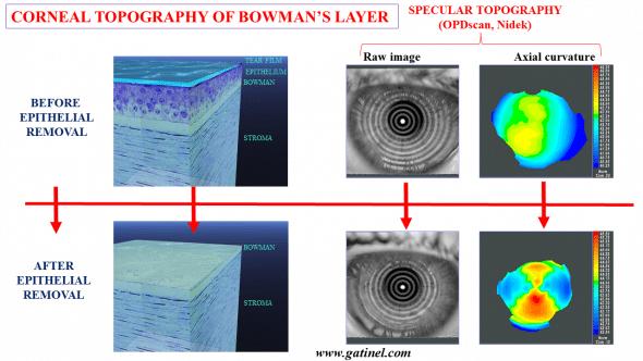 Bowman layer topography