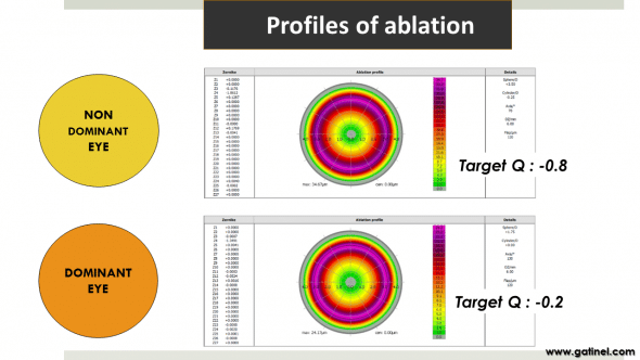 Figure 8d : Representation of the ablation profiles for the dominant vs non-dominant eye. Targeting a more prolate cornea causes the reduction of the peripheral depth of ablation.