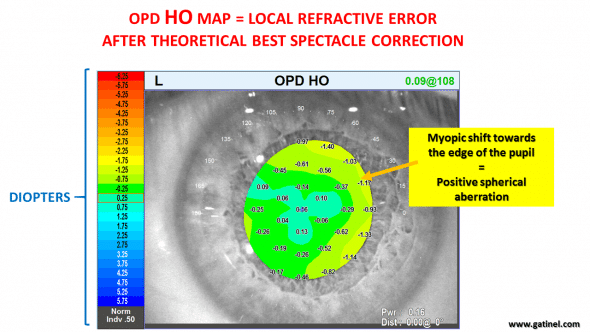 index myopia nuclear cataract