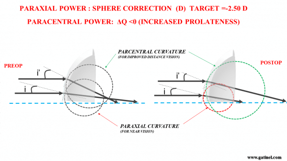 Figure 6 b : The combined correction of presbyopia and hyperopia can be schematically depicted as the change of paraxial curvature to a value (shorter radius) which induces a postoperative myopic refraction (ex: -2.50 D). Paracentral curvarture can be adjusted by selecting a specific target asphericity. This asphericity change aims at reducing the paracentral curvature, so that the refractive power of the paracentral zone is close to emmetropia.