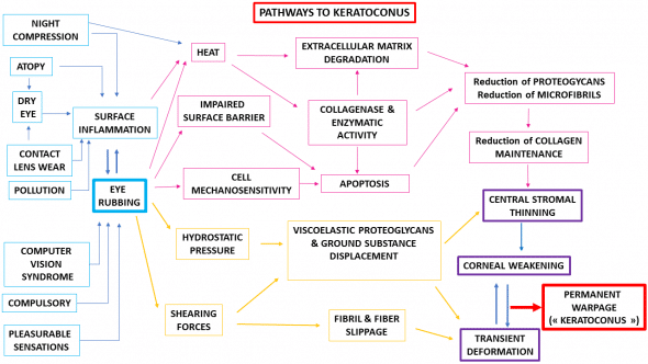 keratoconus patho genesis chart