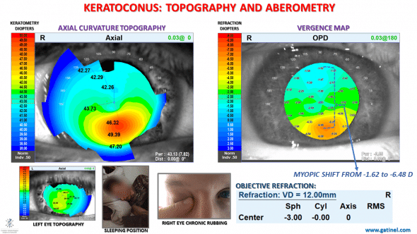 corneal topography and vergence map