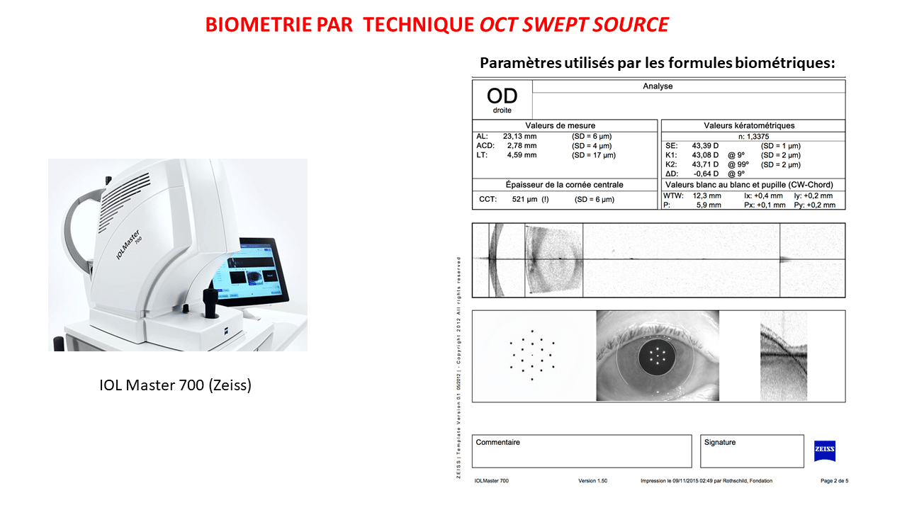 Ocular biometry, calculation of implant - doctor Damien Gatinel