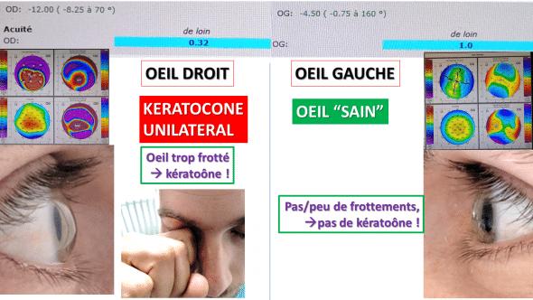 keratocone unilateral