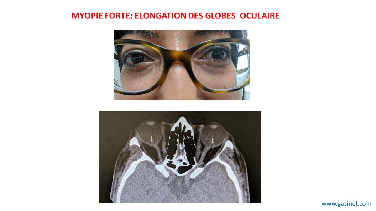 Myopie Causes Facteurs De Risque Docteur Damien Gatinel