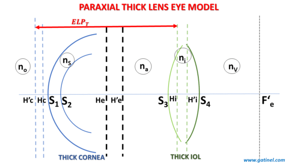 The position of the focal point of the optical system corresponding to the cornea + IOL (F'e) with respect to the plane of the photoreceptors of the eye determines the refraction of the pseudophakic eye. If the focal point F'e is located in this plane, the pseudophakic eye is emmetropic. If it is located in front, the eye is myopic, and if it is located behind, the eye is hyperopic.