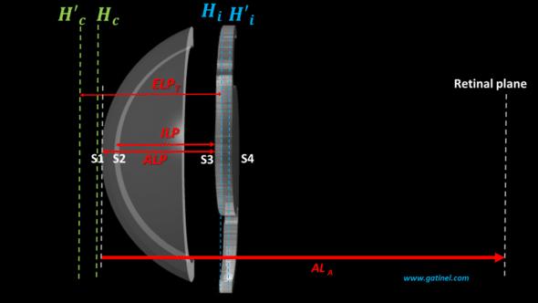 effective lens position vs anterior lens position vs internal lens position in IOL power formula