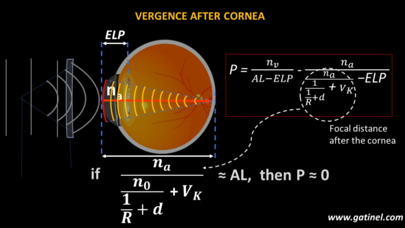 Focal distance after the cornea equal to axial length