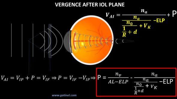 IOL power formula vergence computation thin lens cataract surgery intraocular lens power